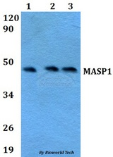 Western blot of MASP1 antibody at 1:500 dilution. Lane 1: HEK293T whole cell lysate. Lane 2: Raw264.7 whole cell lysate. Lane 3: H9C2 whole cell lysate.