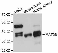 MAT2B Antibody - Western blot analysis of extracts of various cell lines, using MAT2B antibody at 1:3000 dilution. The secondary antibody used was an HRP Goat Anti-Rabbit IgG (H+L) at 1:10000 dilution. Lysates were loaded 25ug per lane and 3% nonfat dry milk in TBST was used for blocking. An ECL Kit was used for detection and the exposure time was 30s.