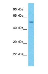 Western blot of MATK Antibody with HeLa Whole Cell lysate.  This image was taken for the unconjugated form of this product. Other forms have not been tested.