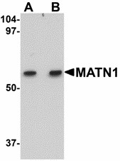 Western blot of MATN1 in rat liver tissue lysate with MATN1 antibody at (A) 1 and (B) 2 ug/ml.
