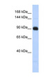 MATN2 / Matrilin 2 antibody Western blot of Fetal Lung lysate. This image was taken for the unconjugated form of this product. Other forms have not been tested.