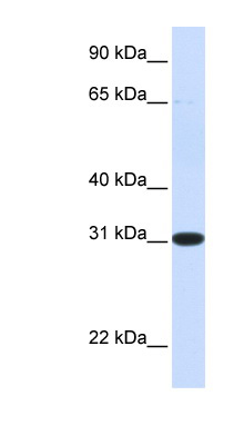 PBLD antibody LS-C102699 Western blot of Fetal Liver lysate.  This image was taken for the unconjugated form of this product. Other forms have not been tested.