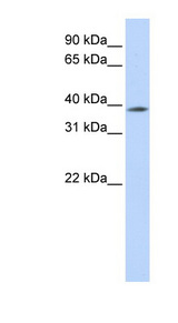 MBD2 Antibody - MBD2 antibody Western blot of 721_B cell lysate. This image was taken for the unconjugated form of this product. Other forms have not been tested.
