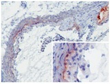 MBL-A (8G6) deposition in developing murine atherosclerotic lesions. Staining of frozen tissue sections with antibody 8G6. Anti-mouse MBL-A at 2 ug/ml (2h, RT). MBL-A was detected on the intima to media border as well as throughout the media (insert). Furthermore, extensive MBL-A deposition was seen at sites of necrosis (upper right corner).