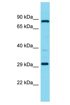 MBLAC1 Antibody - MBLAC1 antibody Western Blot of Fetal Liver. Antibody dilution: 1 ug/ml.  This image was taken for the unconjugated form of this product. Other forms have not been tested.