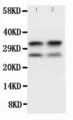 WB of Myelin Basic Protein / MBP antibody. All lanes: Anti-MBP at 0.5ug/ml. WB: Mouse Brain Tissue Lysate at 40ug. Predicted bind size: 33KD. Observed bind size: 33KD.