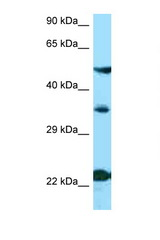 MC4R antibody Western blot of ACHN Cell lysate. Antibody concentration 1 ug/ml.  This image was taken for the unconjugated form of this product. Other forms have not been tested.