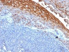 MCAM / CD146 Antibody - Formalin-fixed, paraffin-embedded human tonsil stained with CD146 antibody (MUC18/1130).  This image was taken for the unmodified form of this product. Other forms have not been tested.
