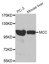 Western blot of extracts of various cell lines, using MCC antibody.