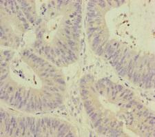 MCCC1 Antibody - Immunohistochemistry of paraffin-embedded human colon cancer at dilution of 1:100