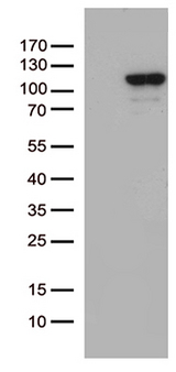 MCF2 / DBL Antibody - HEK293T cells were transfected with the pCMV6-ENTRY control. (Left lane) or pCMV6-ENTRY MCF2. (Right lane) cDNA for 48 hrs and lysed. Equivalent amounts of cell lysates. (5 ug per lane) were separated by SDS-PAGE and immunoblotted with anti-MCF2. (1:500)
