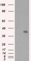 HEK293T cells were transfected with the pCMV6-ENTRY control (Left lane) or pCMV6-ENTRY MCL1 (Right lane) cDNA for 48 hrs and lysed. Equivalent amounts of cell lysates (5 ug per lane) were separated by SDS-PAGE and immunoblotted with anti-MCL1.