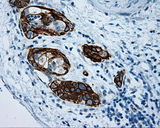 IHC of paraffin-embedded Carcinoma of pancreas tissue using anti-MCL1 mouse monoclonal antibody. (Dilution 1:50).