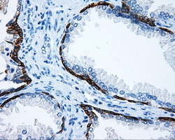 IHC of paraffin-embedded prostate tissue using anti-MCL1 mouse monoclonal antibody. (Dilution 1:50).