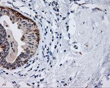 MCL1 / MCL 1 Antibody - IHC of paraffin-embedded breast tissue using anti-MCL1 mouse monoclonal antibody. (Dilution 1:50).