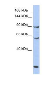 MCM8 antibody LS-C110194 Western blot of OVCAR-3 cell lysate.  This image was taken for the unconjugated form of this product. Other forms have not been tested.