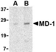 Western blot of MD-1 in Daudi cell lysate with MD-1 antibody at (A) 1 and (B) 2 g/ml.