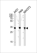 MDH2 Antibody western blot of A431,HeLa and mouse NIH/3T3 cell line lysates (35 ug/lane). The MDH2 antibody detected the MDH2 protein (arrow).