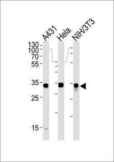 MDH / MDH2 Antibody - MDH2 Antibody western blot of A431,HeLa and mouse NIH/3T3 cell line lysates (35 ug/lane). The MDH2 antibody detected the MDH2 protein (arrow).