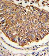 MDH / MDH2 Antibody - Formalin-fixed and paraffin-embedded human lung carcinoma reacted with MDH2 Antibody , which was peroxidase-conjugated to the secondary antibody, followed by DAB staining. This data demonstrates the use of this antibody for immunohistochemistry; clinical relevance has not been evaluated.