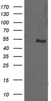 HEK293T cells were transfected with the pCMV6-ENTRY control (Left lane) or pCMV6-ENTRY MDM4 (Right lane) cDNA for 48 hrs and lysed. Equivalent amounts of cell lysates (5 ug per lane) were separated by SDS-PAGE and immunoblotted with anti-MDM4.
