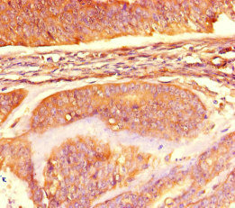 Immunohistochemistry of paraffin-embedded human endometrial cancer at dilution of 1:100