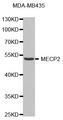 Western blot analysis of extracts of MDA-MB-435 cells, using MECP2 antibody. The secondary antibody used was an HRP Goat Anti-Rabbit IgG (H+L) at 1:10000 dilution. Lysates were loaded 25ug per lane and 3% nonfat dry milk in TBST was used for blocking.