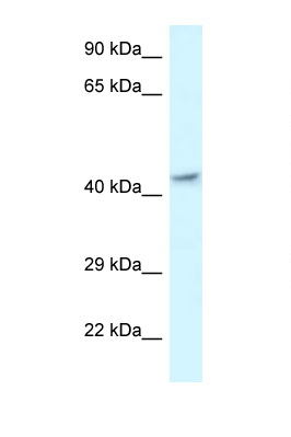 MECR antibody LS-C145477 Western blot of Fetal Brain lysate. Antibody concentration 1 ug/ml.  This image was taken for the unconjugated form of this product. Other forms have not been tested.