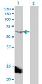Western Blot analysis of PPARBP expression in transfected 293T cell line by PPARBP monoclonal antibody (M01), clone 2A2.Lane 1: PPARBP transfected lysate(61.6 KDa).Lane 2: Non-transfected lysate.