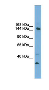 MED14 antibody Western blot of A549 cell lysate. This image was taken for the unconjugated form of this product. Other forms have not been tested.