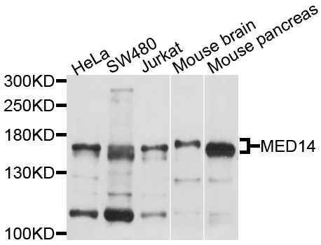 Western blot analysis of extracts of various cell lines, using MED14 antibody at 1:1000 dilution. The secondary antibody used was an HRP Goat Anti-Rabbit IgG (H+L) at 1:10000 dilution. Lysates were loaded 25ug per lane and 3% nonfat dry milk in TBST was used for blocking. An ECL Kit was used for detection and the exposure time was 5s.
