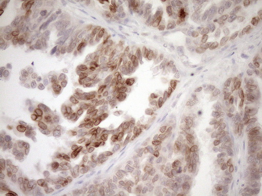 MED15 / ARC105 Antibody - Immunohistochemical staining of paraffin-embedded Adenocarcinoma of Human ovary tissue using anti-MED15 mouse monoclonal antibody. (Heat-induced epitope retrieval by 1mM EDTA in 10mM Tris buffer. (pH8.5) at 120°C for 3 min. (1:150)