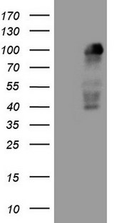 MED15 / ARC105 Antibody - HEK293T cells were transfected with the pCMV6-ENTRY control (Left lane) or pCMV6-ENTRY MED15 (Right lane) cDNA for 48 hrs and lysed. Equivalent amounts of cell lysates (5 ug per lane) were separated by SDS-PAGE and immunoblotted with anti-MED15.