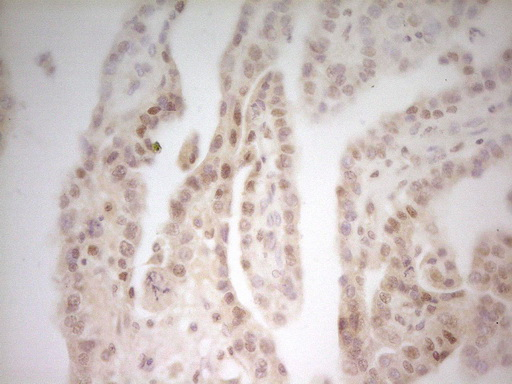 MED15 / ARC105 Antibody - IHC of paraffin-embedded Adenocarcinoma of Human ovary tissue using anti-MED15 mouse monoclonal antibody. (Heat-induced epitope retrieval by 1 mM EDTA in 10mM Tris, pH8.5, 120°C for 3min).