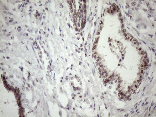 MED15 / ARC105 Antibody - Immunohistochemical staining of paraffin-embedded Carcinoma of Human prostate tissue using anti-MED15 mouse monoclonal antibody. (Heat-induced epitope retrieval by 1mM EDTA in 10mM Tris buffer. (pH8.5) at 120 oC for 3 min. (1:150)