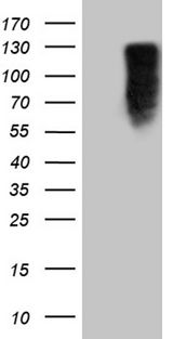 MED15 / ARC105 Antibody - HEK293T cells were transfected with the pCMV6-ENTRY control. (Left lane) or pCMV6-ENTRY MED15. (Right lane) cDNA for 48 hrs and lysed