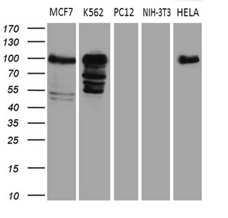 MED15 / ARC105 Antibody - Western blot analysis of extracts. (35ug) from 5 different cell lines by using anti-MED15 monoclonal antibody. (1:500)