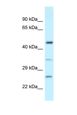 MED18 antibody LS-C145725 Western blot of Fetal Kidney lysate. Antibody concentration 1 ug/ml.  This image was taken for the unconjugated form of this product. Other forms have not been tested.