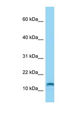MED21 / SURB7 antibody Western blot of HeLa Cell lysate. Antibody concentration 1 ug/ml.  This image was taken for the unconjugated form of this product. Other forms have not been tested.