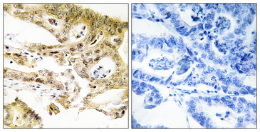 Immunohistochemistry analysis of paraffin-embedded human colon carcinoma tissue, using MED23 Antibody. The picture on the right is blocked with the synthesized peptide.