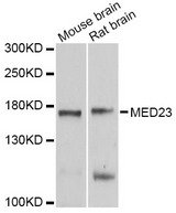 Western blot analysis of extracts of various cell lines, using MED23 antibody at 1:1000 dilution. The secondary antibody used was an HRP Goat Anti-Rabbit IgG (H+L) at 1:10000 dilution. Lysates were loaded 25ug per lane and 3% nonfat dry milk in TBST was used for blocking. An ECL Kit was used for detection and the exposure time was 10s.