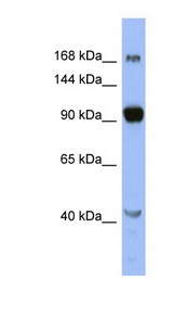 MED23 / DRIP130 antibody Western blot of OVCAR-3 cell lysate. This image was taken for the unconjugated form of this product. Other forms have not been tested.