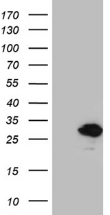 MED28 / Magicin Antibody - HEK293T cells were transfected with the pCMV6-ENTRY control. (Left lane) or pCMV6-ENTRY MED28. (Right lane) cDNA for 48 hrs and lysed. Equivalent amounts of cell lysates. (5 ug per lane) were separated by SDS-PAGE and immunoblotted with anti-MED28. (1:2000)