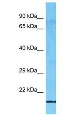 MED30 antibody Western Blot of ACHN. Antibody dilution: 1 ug/ml.  This image was taken for the unconjugated form of this product. Other forms have not been tested.