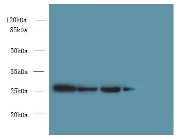 Western blot. All lanes: MED7 antibody at 6 ug/ml. Lane 1: Jurkat whole cell lysate. Lane 2: HeLa whole cell lysate. Lane 3: Mouse thymus tissue. Lane 4: NIH/3T3 whole cell lysate. Secondary antibody: Goat polyclonal to Rabbit IgG at 1:10000 dilution. Predicted band size: 27 kDa. Observed band size: 27 kDa.