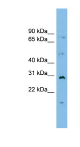 MED7 / CRSP9 Antibody - MED7 / CRSP9 antibody Western blot of PANC1 cell lysate. This image was taken for the unconjugated form of this product. Other forms have not been tested.