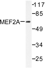 Western blot of MEF2A (A306) pAb in extracts from NIH/3T3 cells treated with PMA.