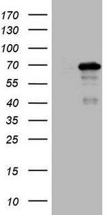 MEF2D Antibody - HEK293T cells were transfected with the pCMV6-ENTRY control (Left lane) or pCMV6-ENTRY MEF2D (Right lane) cDNA for 48 hrs and lysed. Equivalent amounts of cell lysates (5 ug per lane) were separated by SDS-PAGE and immunoblotted with anti-MEF2D.