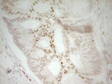 MEF2D Antibody - IHC of paraffin-embedded Adenocarcinoma of Human colon tissue using anti-MEF2D mouse monoclonal antibody. (Heat-induced epitope retrieval by 1 mM EDTA in 10mM Tris, pH8.5, 120°C for 3min).