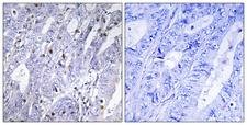 MEF2D Antibody - Immunohistochemistry analysis of paraffin-embedded human colon carcinoma tissue, using MEF2D Antibody. The picture on the right is blocked with the synthesized peptide.